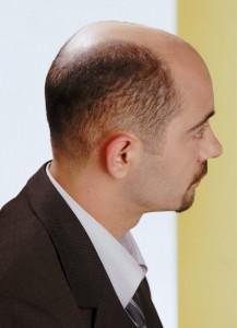 chute_de_cheveux